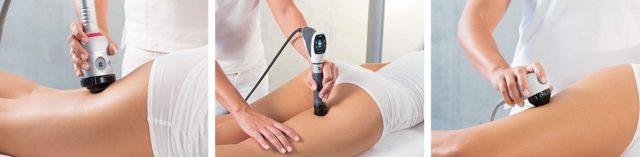 karboksyterapia zabieg na ciało
