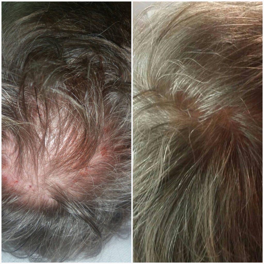 zabieg na wypadanie włosów - karboksyterapia